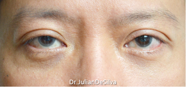 Male Blepharoplasty After 3
