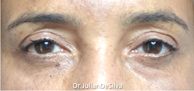 Female Blepharoplasty After 9
