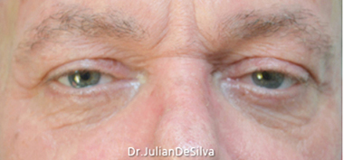 Male Blepharoplasty After 5
