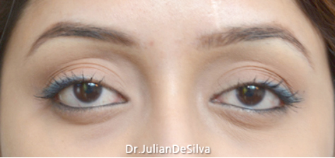 Eyelid Surgery (Blepharoplasty) After 17