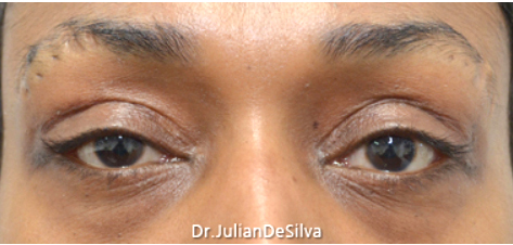 Female Blepharoplasty After 11