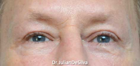 Male Blepharoplasty After 6