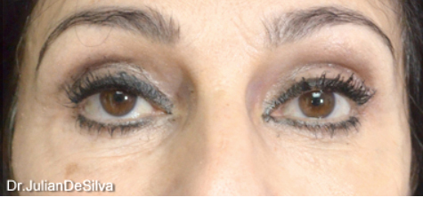 Female Blepharoplasty After 12