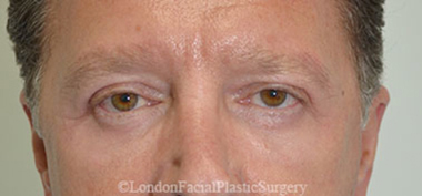 Eyelid Surgery (Blepharoplasty) After 22