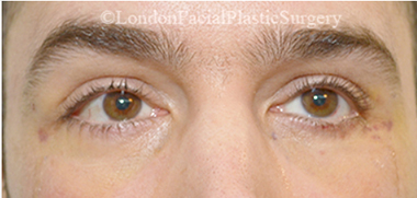 Eyelid Surgery (Blepharoplasty) After 25