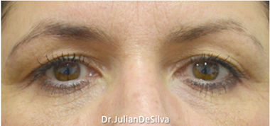 Female Blepharoplasty Before 8