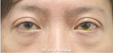 Eyelid Surgery (Blepharoplasty) Before 13
