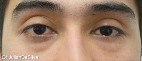 Eyelid Surgery (Blepharoplasty) Before 15