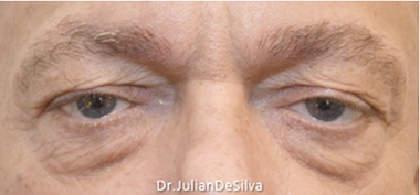 Male Blepharoplasty Before 5