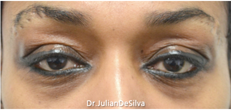 Female Blepharoplasty Before 11