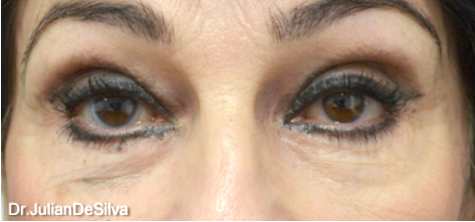 Female Blepharoplasty Before 12