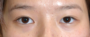 Female Blepharoplasty Before 13