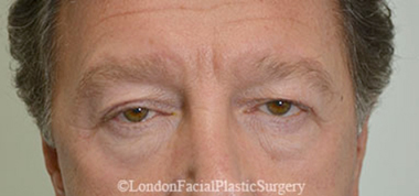Eyelid Surgery (Blepharoplasty) Before 22