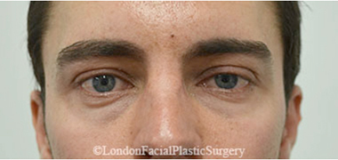 Eyelid Surgery (Blepharoplasty) Before 23