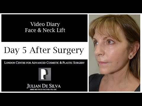 Watch Video: Facelift & Neck Lift Video Diary Day 5 After Surgery