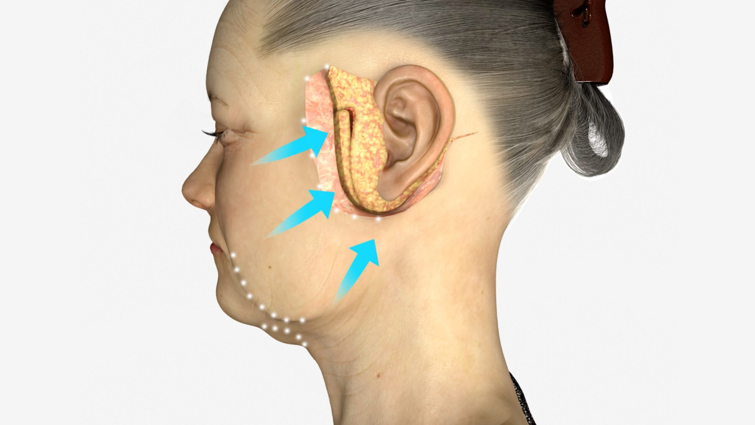 Facelift (Rhytidectomy) - scheme face, surgery zone around ear (female face, left side view)