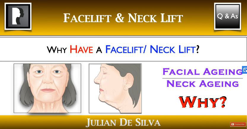 Watch Video: Why have a facelift?