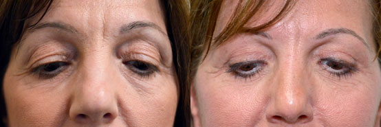 Woman's face Before and After Upper Blepharoplasty Scar at 6weeks, front view, patient 1