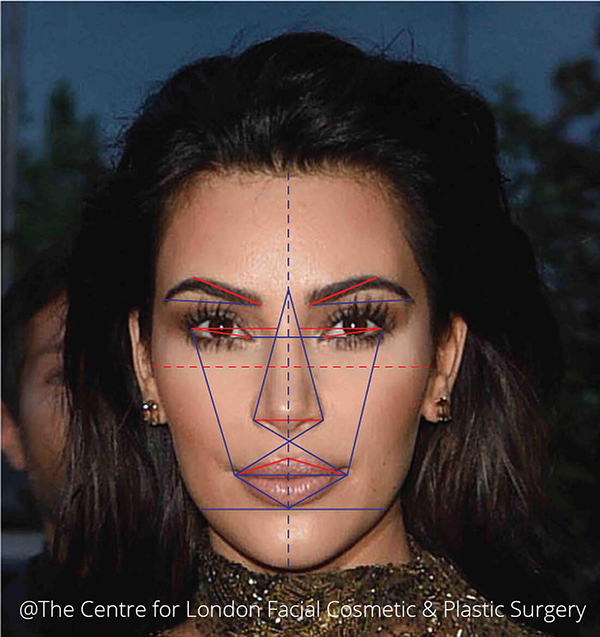 Facial anatomy which is characterised by marked recession of cheeks