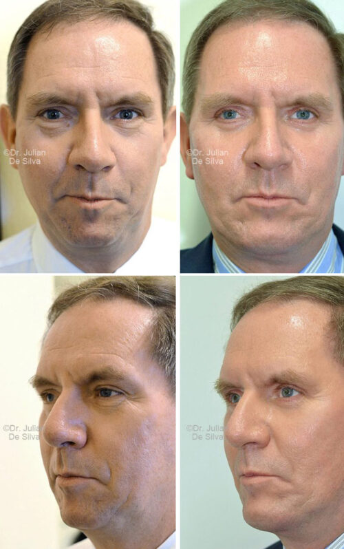 Male face, Before and After Facelift & Neck Lift Treatment, front and left side oblique view, patient 2