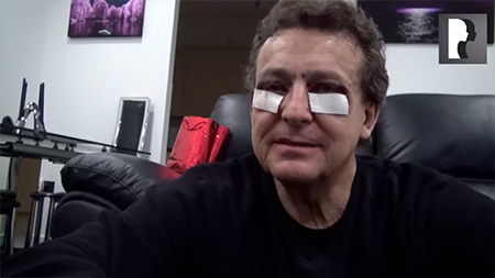 Male Upper & Lower Blepharoplasty with Fat transfer and Laser Skin Resurfacing Patient Diary