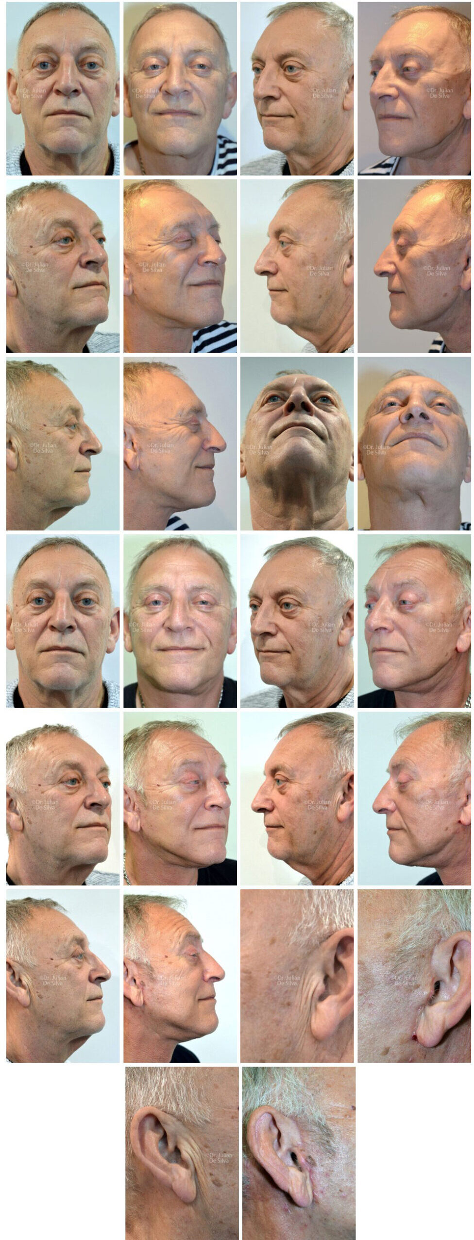 Watch Gallery Photos: Male Facelift & Neck Lift