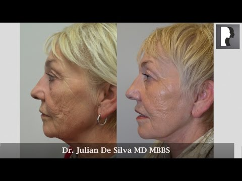 Watch Video: Face & Neck Lift Review & Testimonial