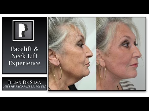 Watch Video: Facelift & Neck Lift Review & Testimonial, 2