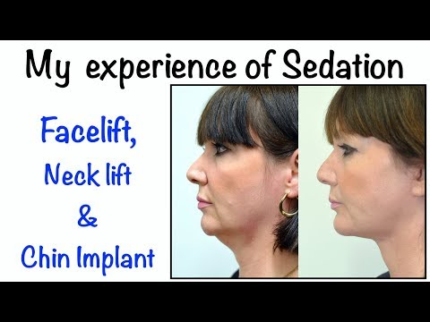 Watch Video: My sedation anaesthesia experience for face and neck lift surgery with a chin implant