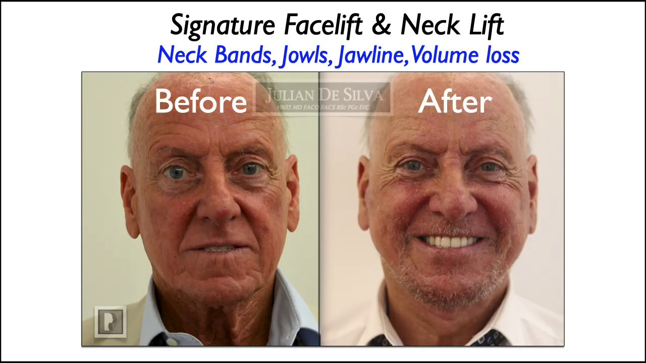 Watch Video: What happens in a neck lift? Animation of a neck lift procedure.