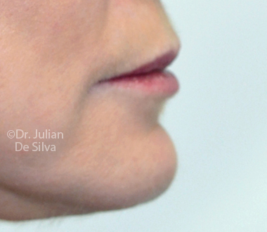 Woman's face: After Laser Resurfacing Treatment - chin, right side view