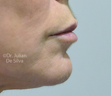 Woman's face: Before Laser Resurfacing Treatment - chin, right side view