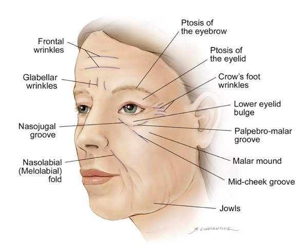 Facelift surgery. Wrinkles area on the face