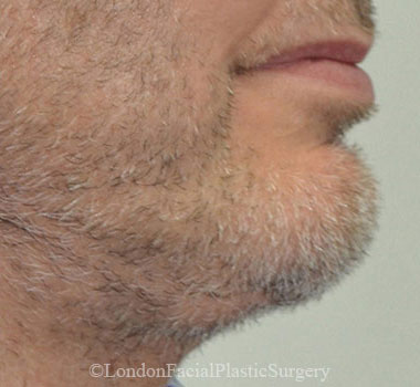 Chin Implants & Reduction After 27