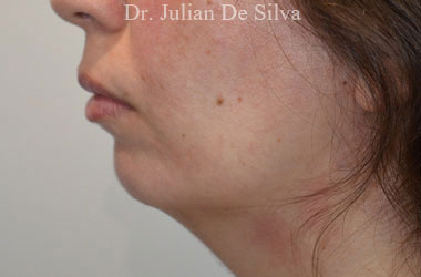 Chin Implants & Reduction Before 10