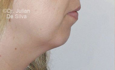 Chin Implants & Reduction Before 18