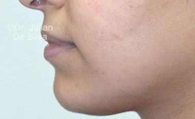 Chin Implants & Reduction After 19