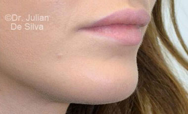 Chin Implants & Reduction After 21
