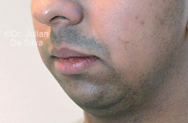 Chin Implants & Reduction Before 7