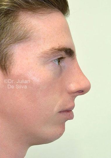 Chin Implants & Reduction After 8