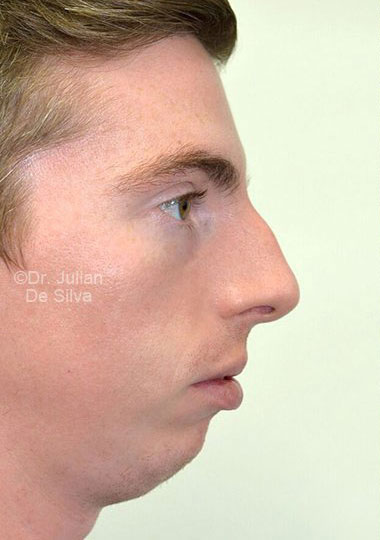 Chin Implants & Reduction Before 8