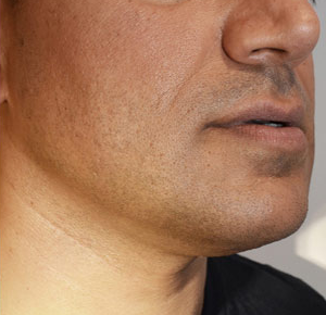 Chin Implants & Reduction After 15