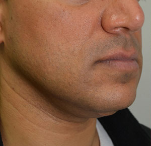 Chin Implants & Reduction Before 15