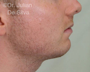 Chin Implants & Reduction After 22