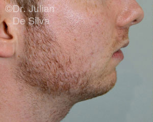 Chin Implants & Reduction Before 22
