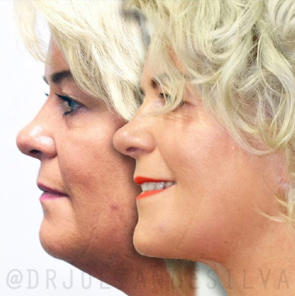 Photos: Before and After Facelift (Rhytidectomy) Treatment