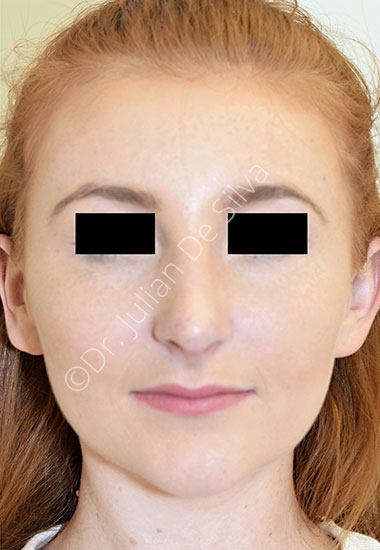 Nose Re-Shaping After 99