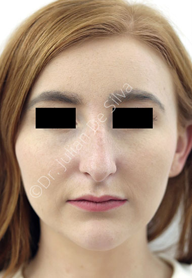 Nose Re-Shaping Before 99