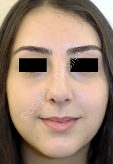 Nose Re-Shaping After 100