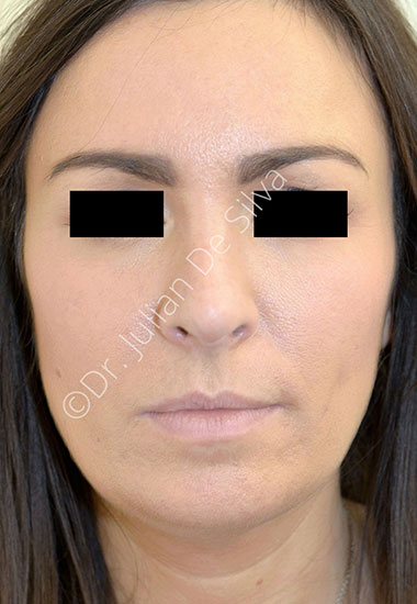 Nose Re-Shaping After 101